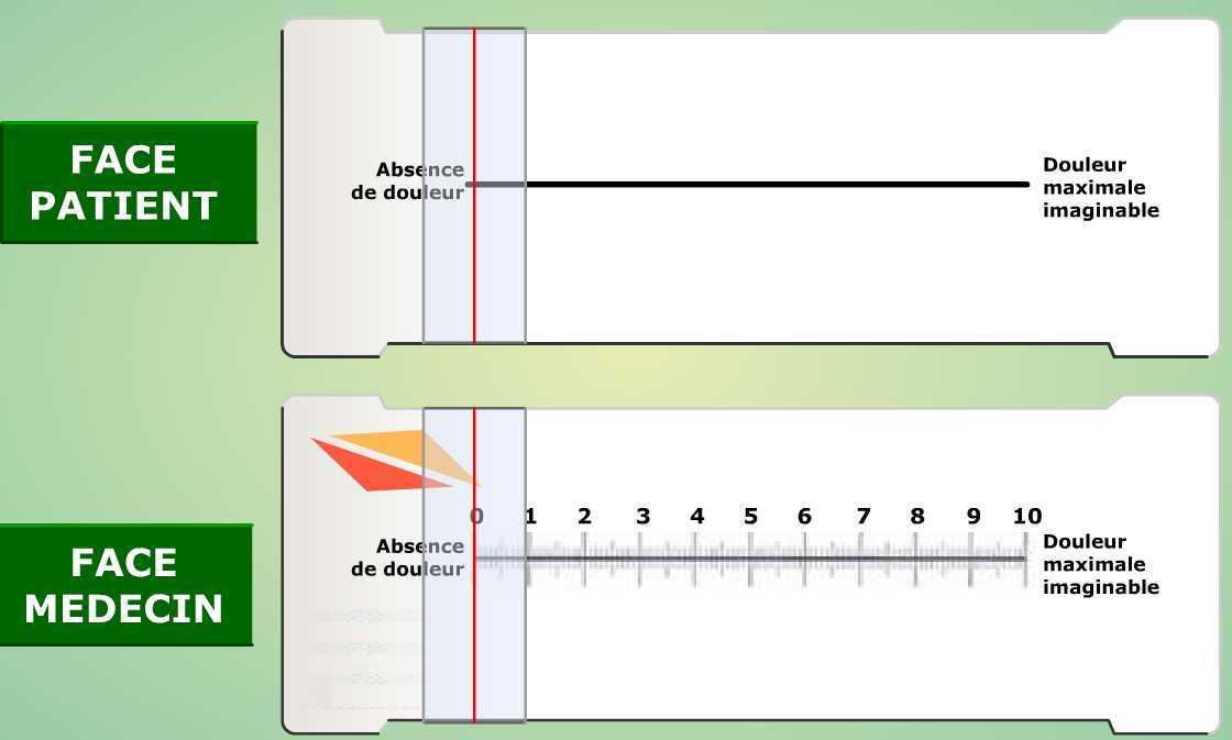 echelle douleur Ambulancier : le site de référence L'échelle visuelle analogique